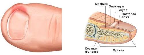 Лекарства лечения грибков